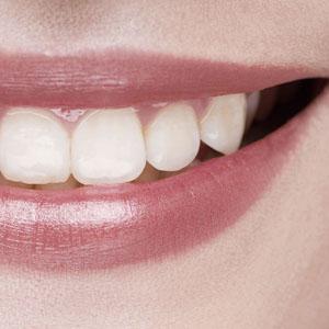 chirurgie orale buccale stomatologie Aix en Provence extraction dents de sagesse implants dentaires greffes osseuses avant implant corticotomie